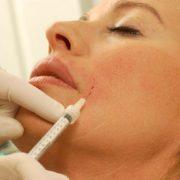 Filler Behandlung mit Spritze | hautok und hautok cosmetics