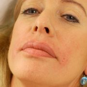 Filler Behandlung | hautok und hautok cosmetics