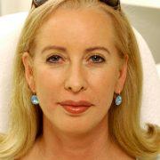 Filler Behandlung Ergebnis | hautok und hautok cosmetics