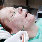 Phenol Peel Vorbrereitung   hautok und hautok cosmetics