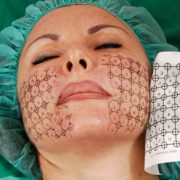 Behandlung Thermage® | hautok und hautok cosmetics