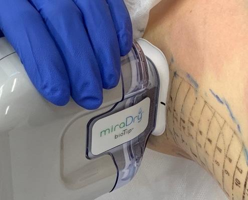 Behandlung Schweißdrüsen mit dem miraDry System | hautOK