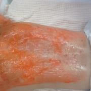 Kleresca® Behandlung Wirkungsstoff auftragen   hautOK München