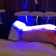 Kleresca® Behandlung Patientin liegt unter dem Lichtgerät   hautOK München