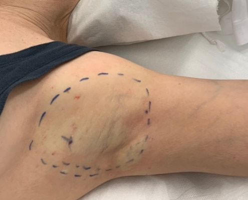 Markierung unter den Achseln vor miraDry Behandlung | hautOK