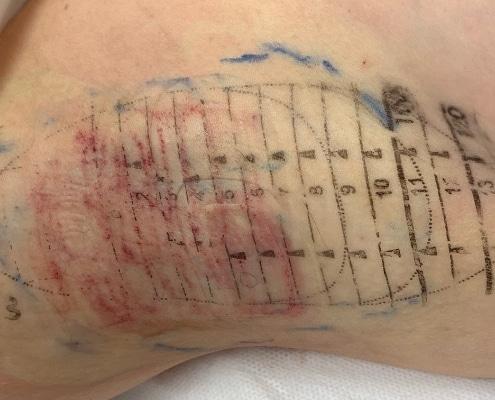 Nach der Behandlung mit dem miraDry Gerät | hautOK