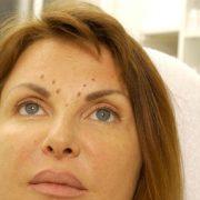 Vistabel Behandlung | hautok und hautok cosmetics