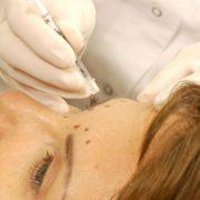 Vistabel-Behandlung | hautok und hautok cosmetics